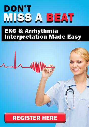 Don't Miss a Beat: EKG & Arrhythmia Interpretation Made Easy
